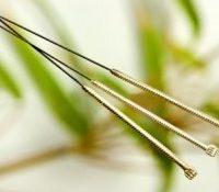 Nu må du ikke glemme muligheden for akupunktur